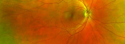 Ultra-Wide Retinal Imagery